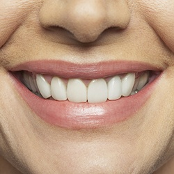 Closeup of flawless smile after all-ceramic restoration