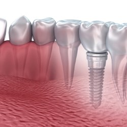 single unit implant