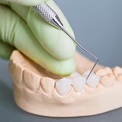 Model of teeth with fixed bridge