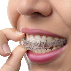 Woman inserting Invisalign
