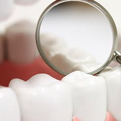 Enlarged teeth in dental mirror after sealant treatment