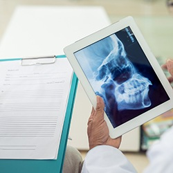 Dentist examining x-ray on tablet