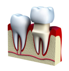 3D Model of a Dental Crown